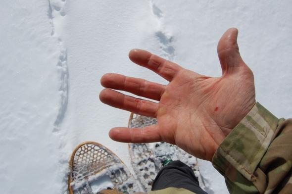 Hauling Hands
